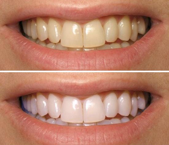 blanqueamiento dental en torrejón de ardoz en dst clinic