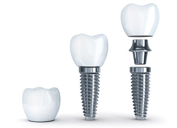 Implantes dentales de primera calidad en torrejón de ardoz
