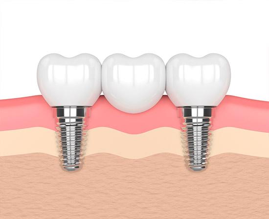 ventajas Implantes Dentales de Carga Inmediata en Torrejón de Ardoz