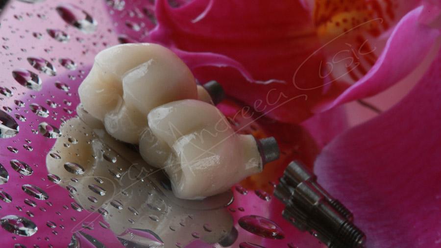Las 5 preguntas más frecuentes sobre implantes dentales
