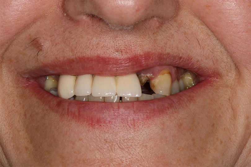 margareta antes del tratamiento de implantes en dst clinic