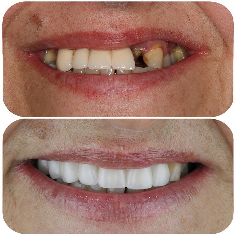 margareta fotomontaje antes y después de su tratamiento de implantes en dst clinic