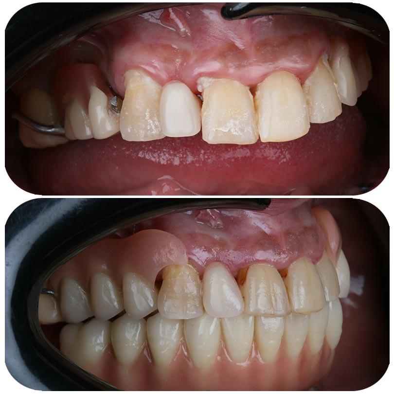 Montaje de nuestra paciente Mihaela durante su tratamiento de implantes