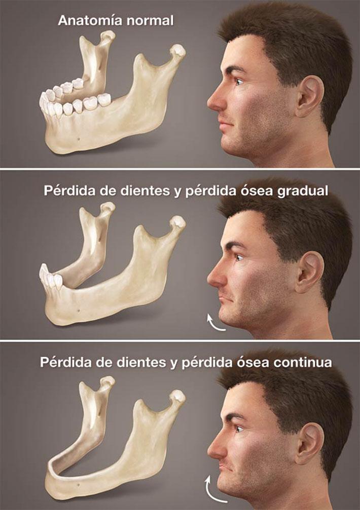 procesos de la pérdida ósea en la boca