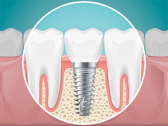 regeneración ósea para implantes dentales en torrejón de ardoz