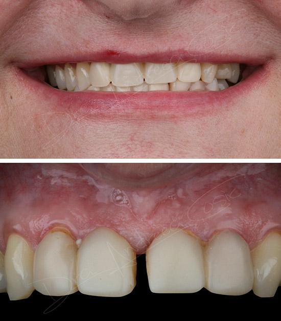 sustitución de puente por implantes dentales en dst clinic