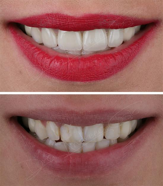 mejora general de sonrisa y labios en dst clinic en torrejón de ardoz