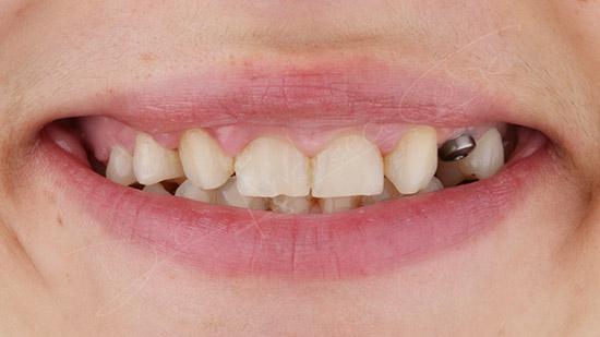 colocación del implante