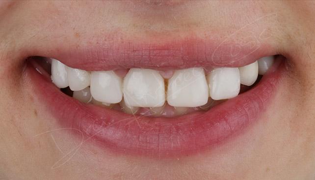 resultado final del tratamiento con implantes y ortodoncia