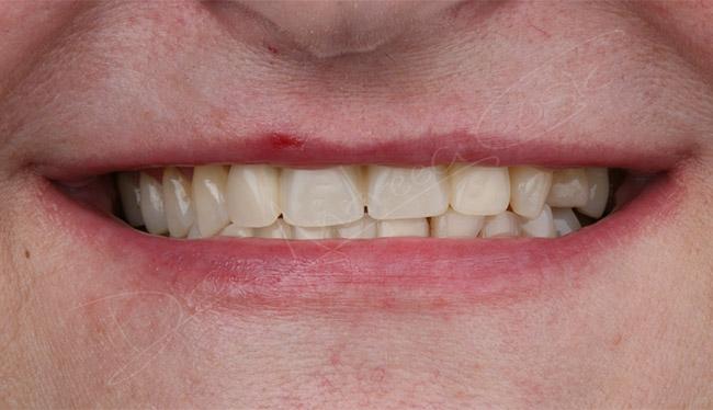sonrisa final del tratamiento de implantes en dst clinic