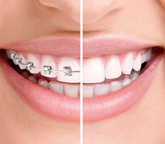 tipos de ortodoncia en torrejón de ardoz