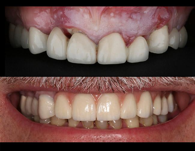 Cambio de Puente por Implantes Dentales