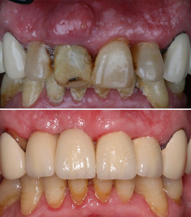foto montaje del antes y el después del tratamiento con implantes
