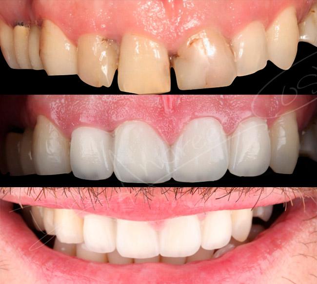 Caso clínico dental de Endodoncia y reconstrucción estética