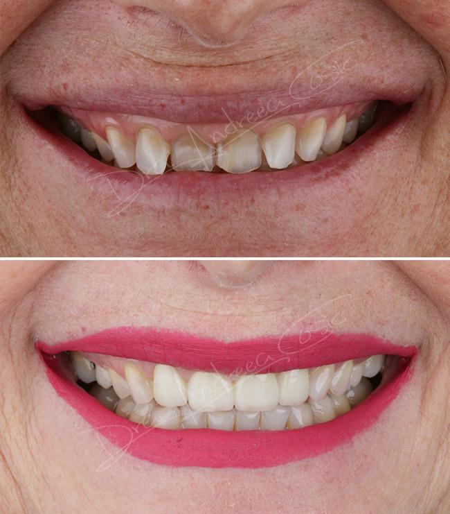 caso clínico cambio de sonrisa en dst clinic