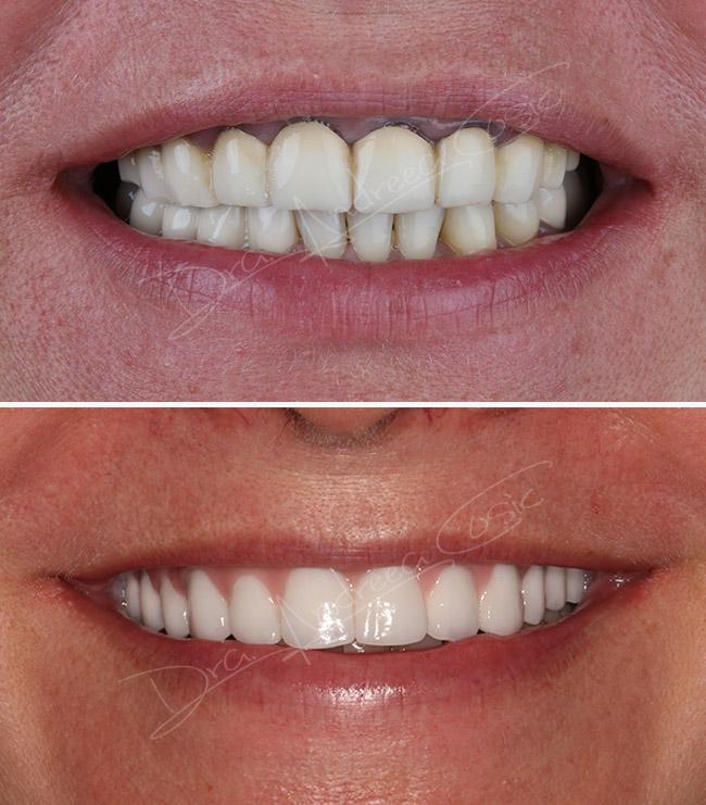 foto montaje antes y después de implantes dentales